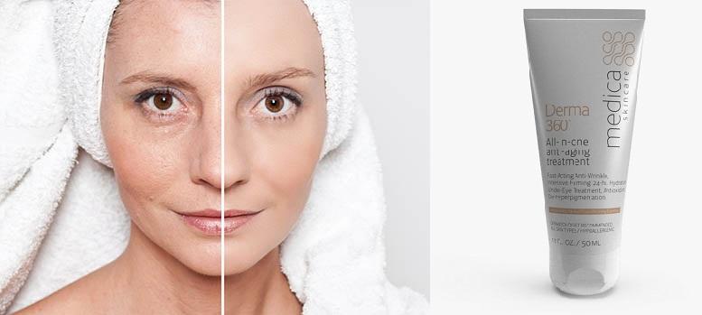 Comment la composition de Derma 360? Effets d'application. Y a-t-il des effets secondaires?